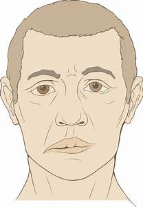 File Bells Palsy Diagram Svg