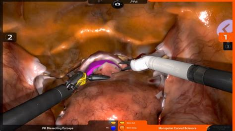 Robotix - Robotic Hysterectomy | Simbionix