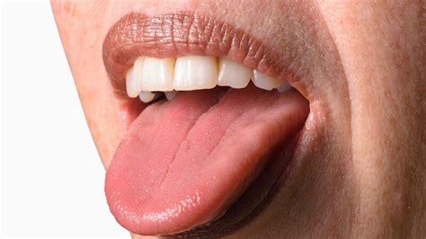 zungenkrebs seltener und boesartiger tumor  der zunge