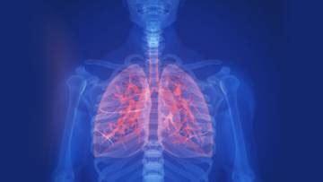 ist eine idiopathische lungenfibrose gesuendernet