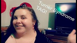 Turner Syndrome Tag