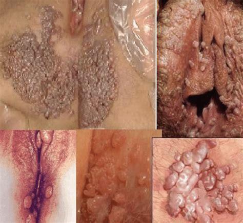 Warts Images Warts Scientific Diagram