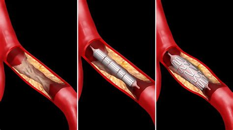 What To Expect With A Stent Heart Attack Heart Health