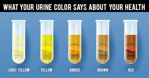 what does the color of urine by anand prakash