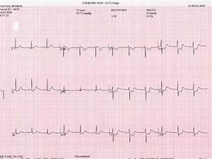 Marked St Segment Depression From V2 To V6 Ecg Leads With