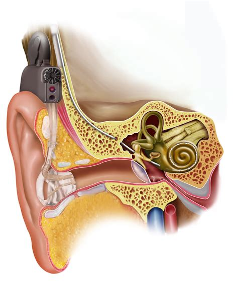 candela cerume electric acoustic stimulation