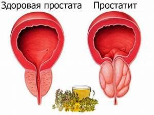 Эректовит препарат от простатита