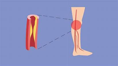 Doppler Vascular Afectiune Arteriala Periferica Leg Picior