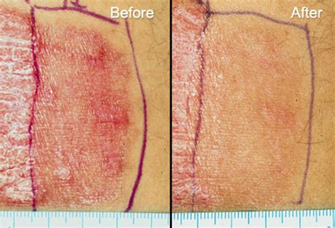 light therapy for psoriasis laser treatment for psoriasis using the modern devices