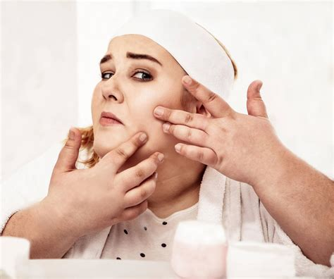 Obsessed With Acne? > Dr. Health Clinic