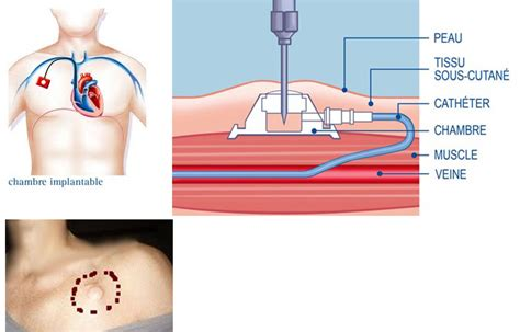 ablation chambre implantable السرطان الإلتهابي تجربة قيمة