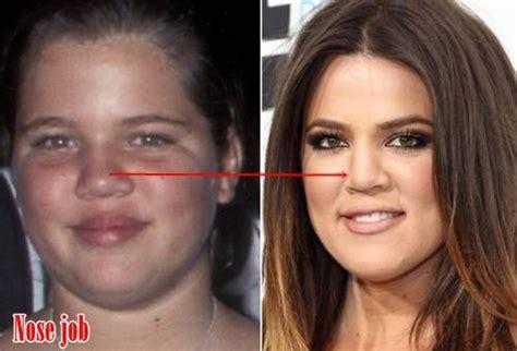 Khloe Kardashian Plastic Surgery Makes Her Totally Changed ...