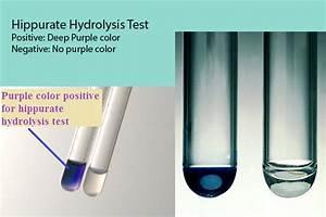 E Herd Test : hippurate hydrolysis test principle uses procedure result interpretation with limitations ~ Watch28wear.com Haus und Dekorationen