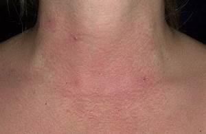 Китайская мазь от псориаза дерматита экземы