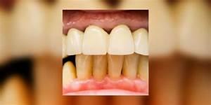 Dents Qui Se Déchaussent Photos : d chaussement des dents j 39 ai les dents qui se d chaussent parodontite e e sant ~ Medecine-chirurgie-esthetiques.com Avis de Voitures