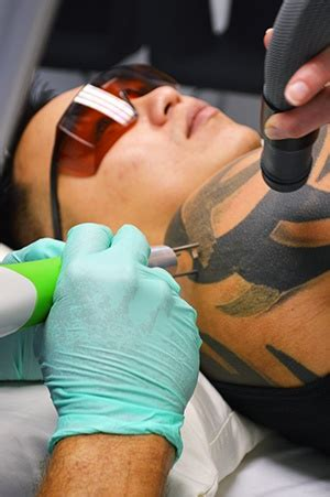frequently asked questions  tattoo removal patients