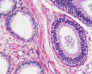 File:Testis histology 014.jpg - Embryology