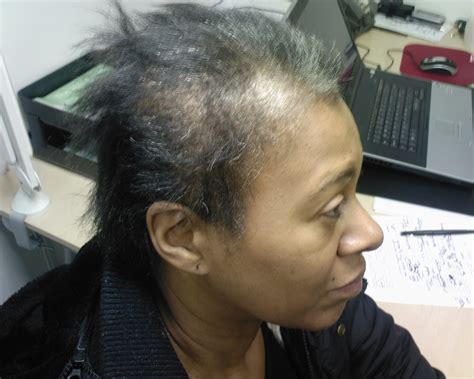 hair centre female hair loss androgenetic alopecia