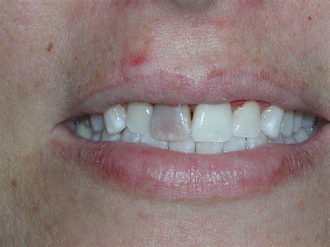 cosmetic dentistry   dark tooth dr caputo palm
