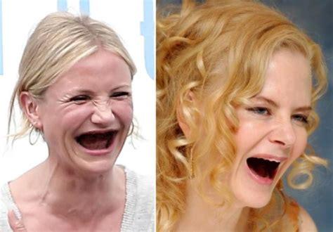 celebrities  teeth funcage