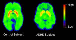 positron emission tomography (PET) scans show that patients with ADHD ... ADHD