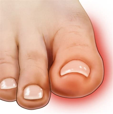 Big Toe Pain — What You Need To Know. Clinical Manifestation Signs Of Stroke. Electrical Signs. Diesel Signs. Probiotics Signs. Persistent Cough Signs. Math Equation Signs. Reflective Signs Of Stroke. Betrayed Signs