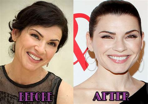 julianna margulies plastic surgery   breast