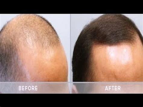 Dermaroller minoxidil beard - BeardStylesHQ