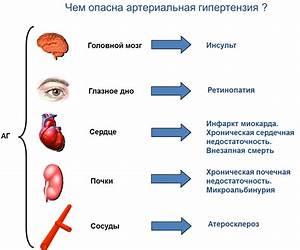 Лечение гипертонии дома