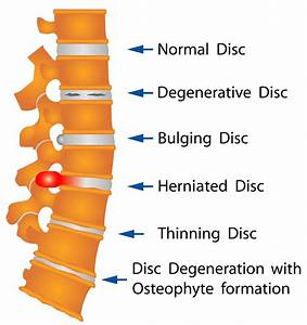 Herniated Disc – The Spine Hospital at The Neurological ...