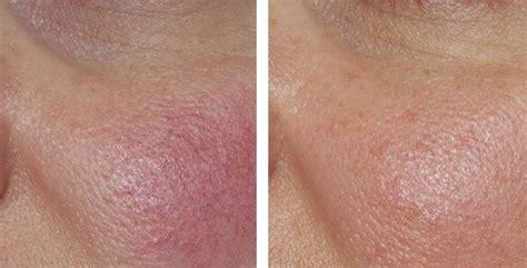 treatment  redness  rosacea laser metz