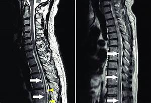 A  Mri On Admission  T2 U2011weighted Images Reveal Spinal