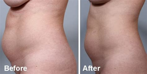 contour light body sculpting before and after body sculpting with bodyfx in st louis st louis laser