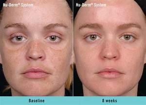 great anti aging skin care