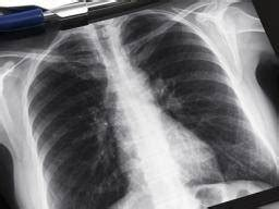 lung scarring  idiopathic pulmonary fibrosis