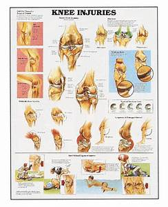 Human Knee Injuries Anatomy Detailed Diagram 20 U0026quot  Wide X 26