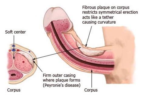 peyronie 39 s disease causes diagnosis and treatment men
