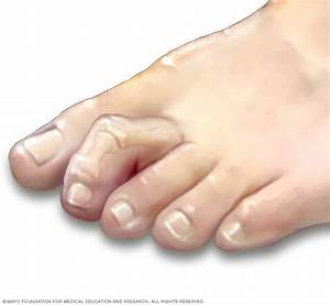 Hammertoe And Mallet Toe Disease Reference Guide