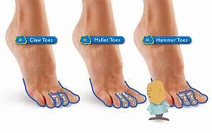 Hammer Toe Symptoms | Thao Spritzer