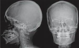 LATERAL AND FRONTAL VIEW OF NORMAL SKULL   buyxraysonline