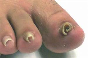 An Ingrown Toenail Hurts...So What Do We Do About It?