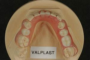 Valplast Prothese Abrechnung : dental keramik technik ~ Themetempest.com Abrechnung