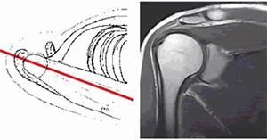 Боль и щелканье в коленном суставе при ходьбе