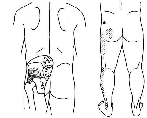 Tintelingen in benen hernia