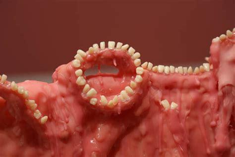 disturbing tooth wall tooth wall