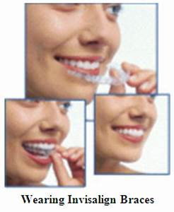 Invisalign Orthodontics Chicago - Clear Braces - Teeth ...
