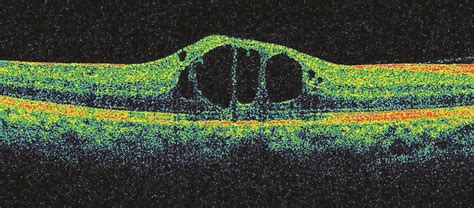 retinal imaging tests retinal condition detection