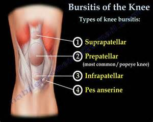 Knee Prepatellar Bursitis