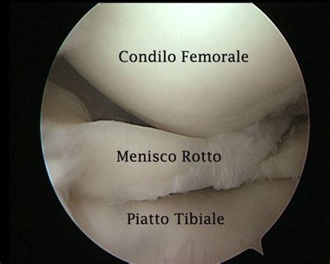 Lesione Corno Posteriore Menisco Interno Artroscopia Lesione Menisco Dott Volpe Giuseppe
