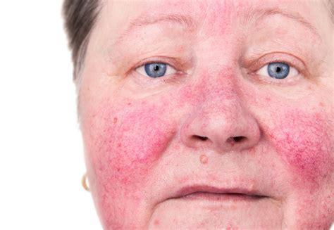 curing acne rosacea improving  health